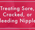 Breast Pads for Cracked Nipples | Nusicare