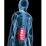 Lower Back Pain - Compression Garments