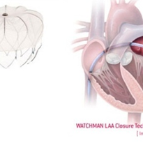 Left Atrial Appendage Closure Device - WATCHMAN