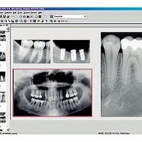 Dental & Eye Imaging Software
