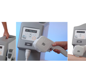 iPulse i200 Portable IPL With High Clinical Effectiveness