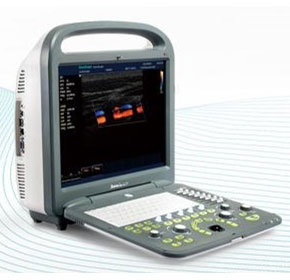 Colour Doppler Ultrasound Scanner | Sonoscape S2