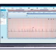 Cardiac Explorer Arrhythmia Analysis Medical Software