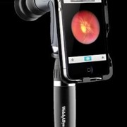 Advanced eye exam technology with iPhone™ application