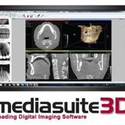 Mediasuite 3D Dental Digital Imaging Software