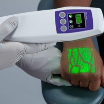 Vein Finder | AccuVein AV500 Vein Viewing System