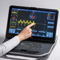 Portable. Powerful. In Touch. | Vivid iq Ultrasound Scanner