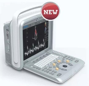 Colour Doppler Portable Ultrasound Machine | Chison Q9