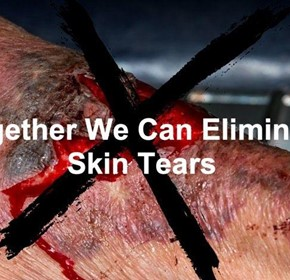 Skin tears can have serious consequences for patients with frail skin