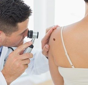 Why some moles become melanoma still a mystery